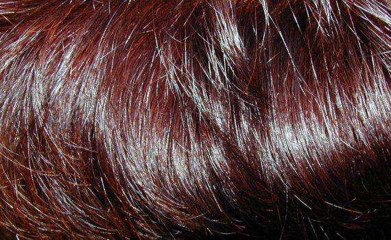 PRP och hårtransplantation